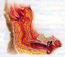 Воспаление наружного уха